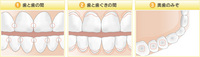 歯1.jpegのサムネイル画像